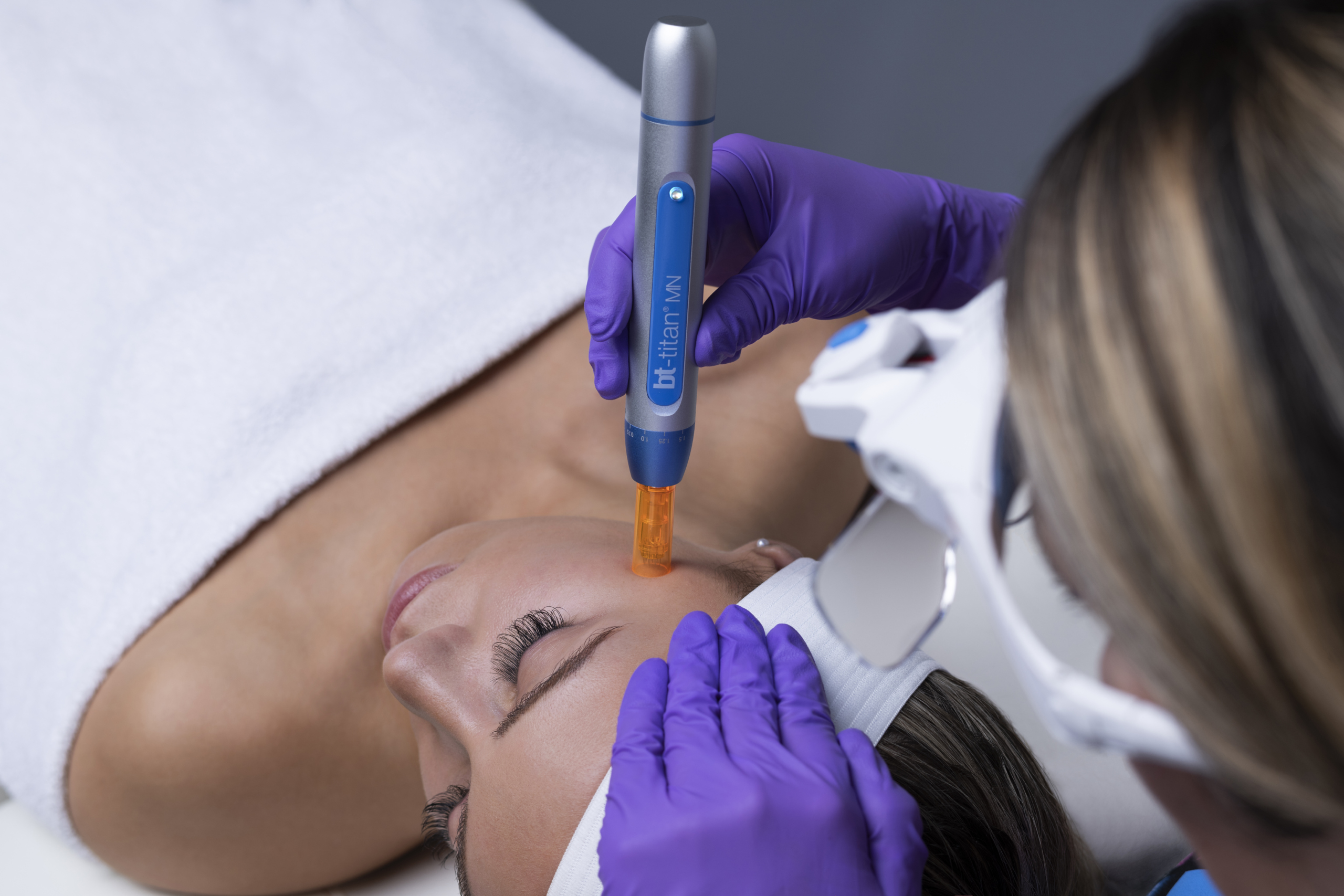 Taylor's Favourite Treatment – Microneedling